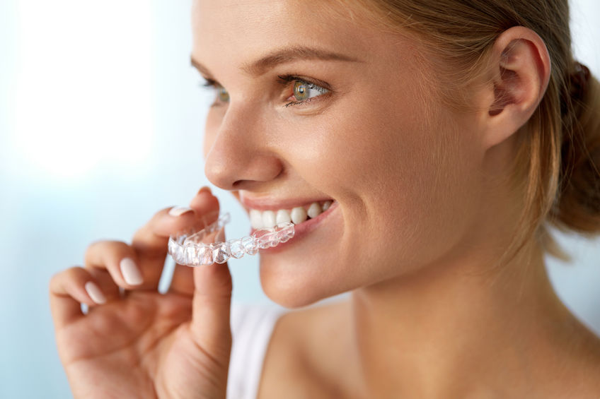 Invisalign vs. Adult Braces